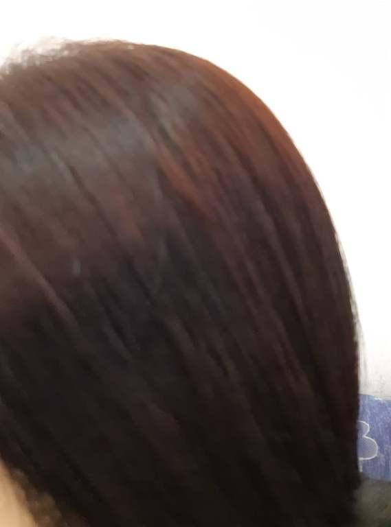 Vencare Hair Lotion Plus ผลิตภัณฑ์ดูแลเส้นผม หยุดผมร่วง